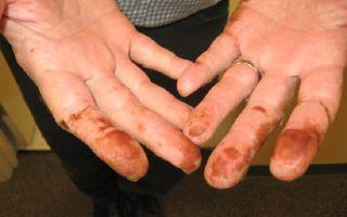 Как отмыть марганцовку с рук: эффективные способы убрать цвет с кожи, одежды и ванны