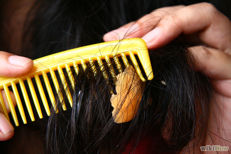 Как убрать жвачку с волос в домашних условиях: средства, чтобы достать жевательную резинку с головы ребенка
